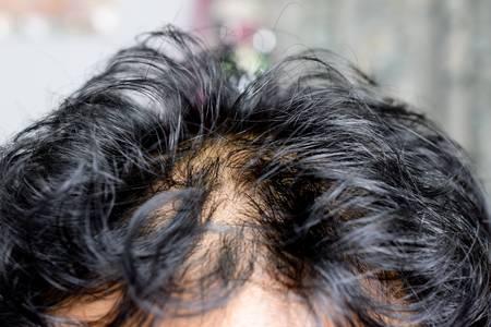 oily scalp, oily hair, greasy hair, greasy scalp, hair loss